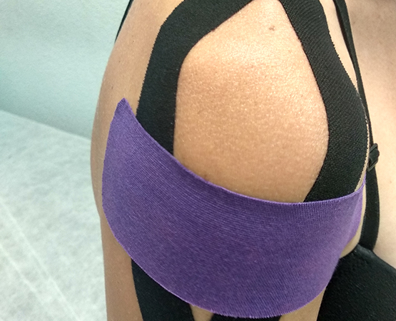 Vendaje Neuromuscular Kinesio Taping Madrid